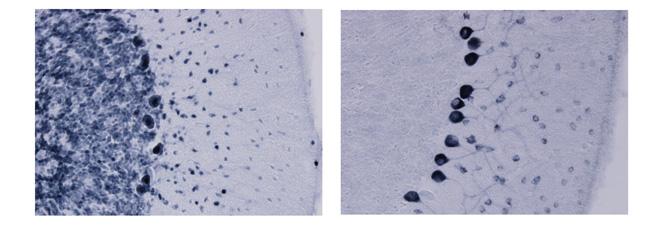 傍腫瘍性神経症候群の血清学的診断