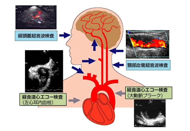 神経超音波検査